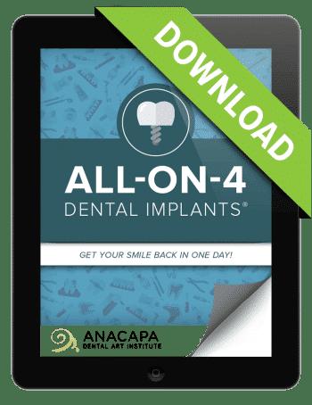 AO4 Implant Ebook