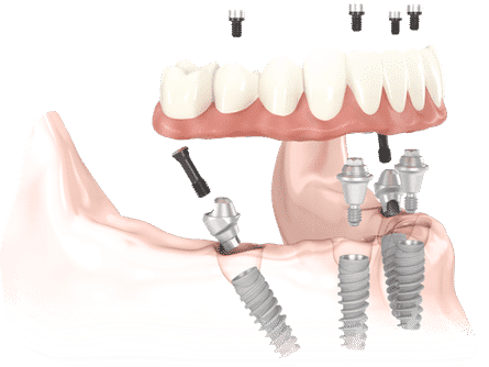 All On Four Implants
