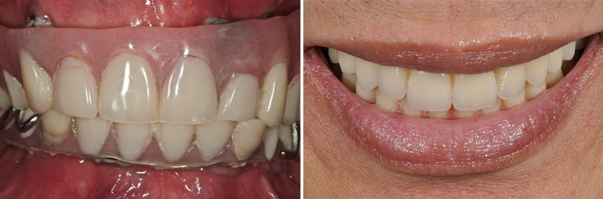 before-after-failed-implant